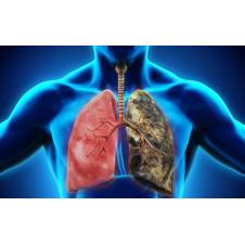 Hiểu biết cơ bản mới về cách ung thư phổi lây lan