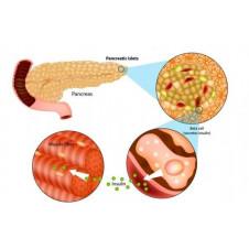 Khoa học đã tìm ra nguyên nhân di truyền bệnh tiểu đường