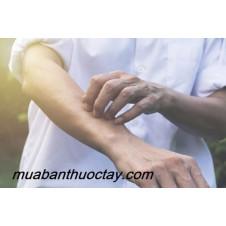 Cách chữa dị ứng nổi mề đay hiệu quả