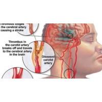 Những dấu hiệu ban đầu của đột quỵ bạn cần nhớ