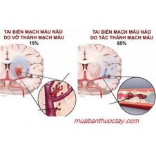 Để hiểu rõ hơn về bệnh tai biến mạch máu não