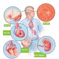 Những thuốc tân dược nào có tác dụng phụ gây tăng huyết áp