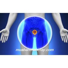 Bệnh ung thư tuyến tiền liệt ở nam giới nguy hại đến mức nào